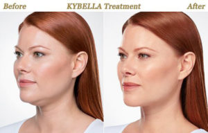 KYBELLA: COST, SIDE EFFECTS, AND WHAT TO EXPECT