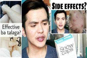Side Effects of Glutathione Skin Whitening Injections